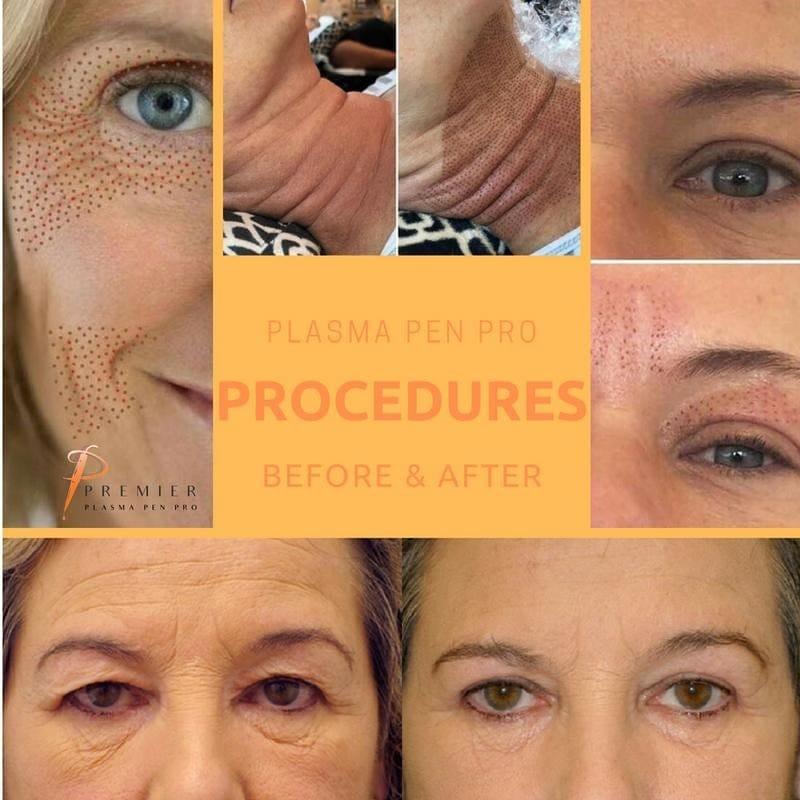 plasma pen, plasma, face lift, non-surgical face lift, facelift, aesthetics, premature ageing, slack skin, tired skin, skin, lift, firm, scar